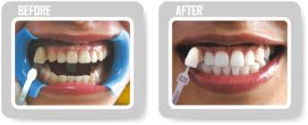 Black woman teeth whitening 5